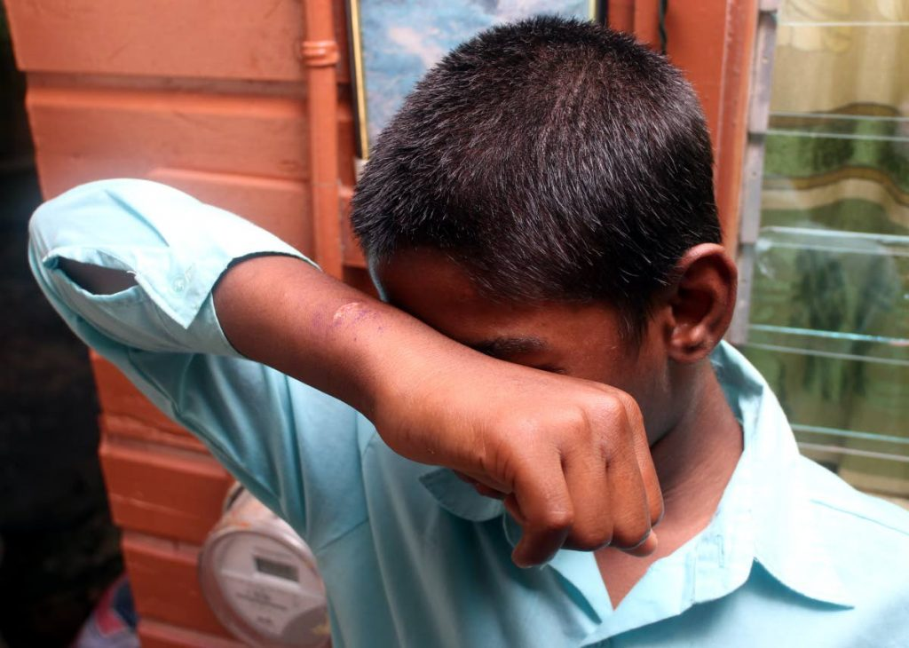 RESCUED:This 14 year old boy was rescued yesterday by officers of the Children's Authority after social media posts revealed him being abused by family members who slashed him across the wrist.PHOTO BY ANSEL JEBODH