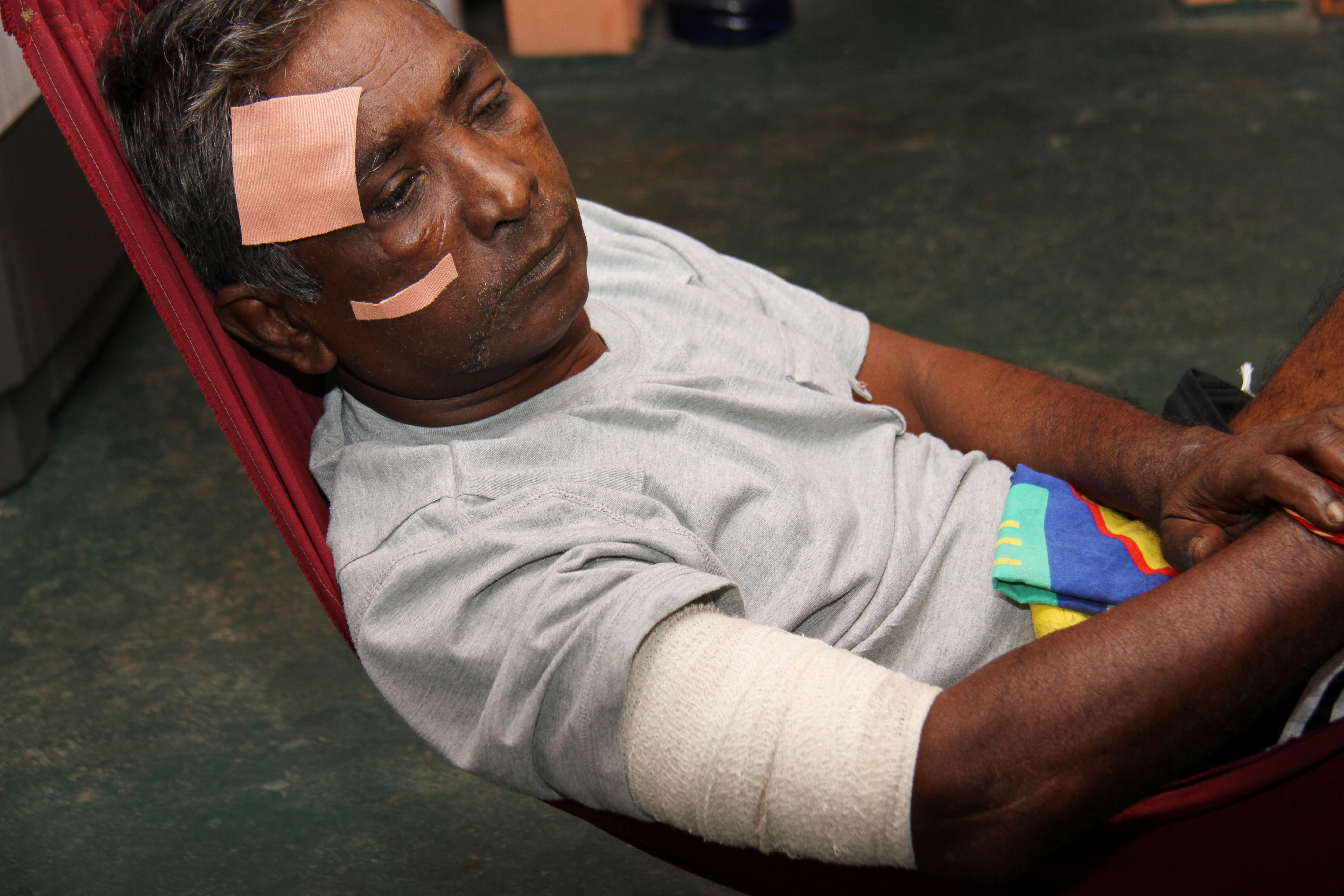Just left with a vivid memory of what happened on the Solomon Hochoy Highway, last Tuesday, Khemraj Ramgohan, 62, of Rousillac, is left with blurred vision to the left eye, along with sharp pains to his back an legs causing diffculty to walk, alongside other injuries to his face, and arms.    PHOTO BY: CHEQUANA WHEELER