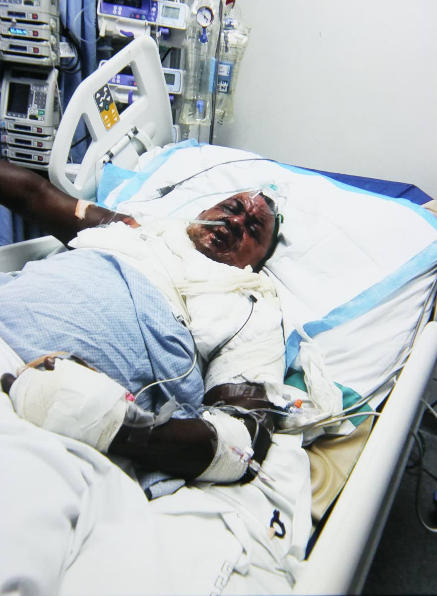 "Raymond ""Abba"" La Fortune, remains in a critical condition at the San Fernando General Hospital after being doused with puncheon and set on fire."