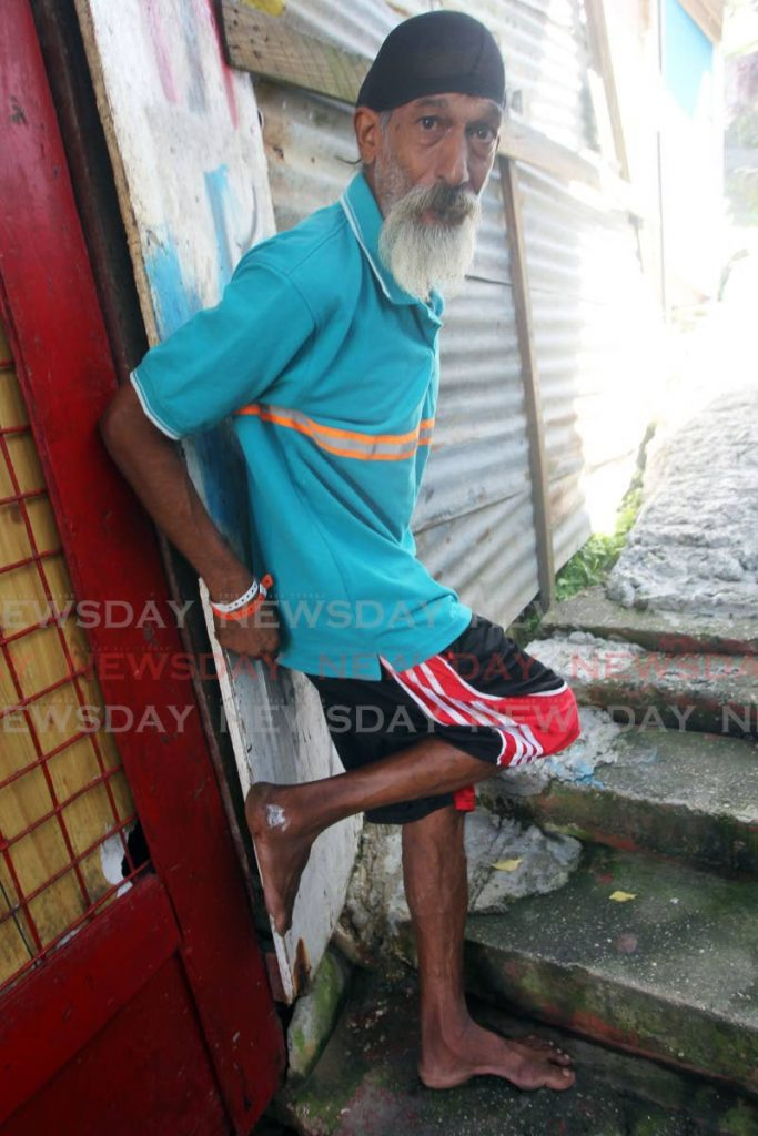 Dexter Oudit show the injury he suffered to his foot after fallen glass cut him while he and his family rescued Rio Claro resident Nicolette Francis  from a burning town-house on Mon Chagrin street San Fernando. - Lincoln Holder