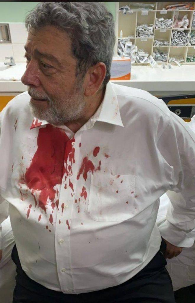 UPDATED] Browne: Assault on St Vincent prime minister cause for concern