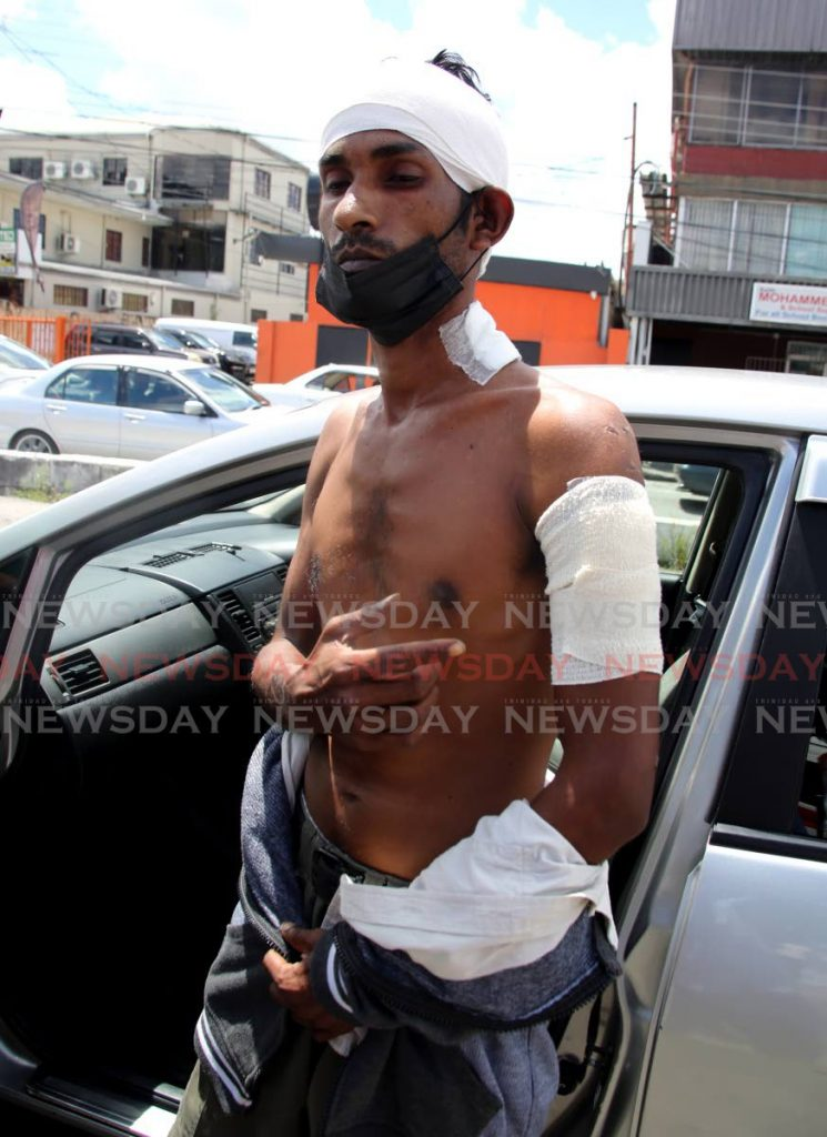 Aranguez taxi driver Adesh Sookram who was stabbed several times by a bandit who entered his car last Friday. - SUREASH CHOLAI